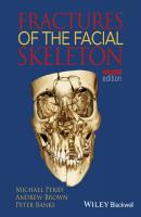 Fractures of the Facial Skeleton - Andrew  Brown