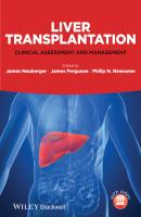 Liver Transplantation. Clinical Assessment and Management - James  Ferguson